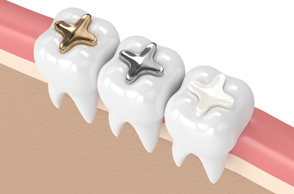 Rendering of teeth with 3 filling materials provided by Brush & Floss Dental Center in Stratford, CT